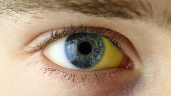 Lebertest - gelbe Augen